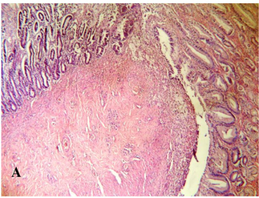 Microscopic examination: Showing the anastomotic site between the pedicled gastric tube and duodenum, ×10.