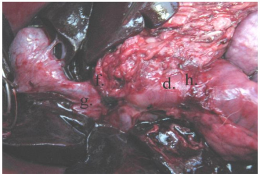Postmortem specimen: Showing anastomosis of the newly fashioned gastric tube to both the distal end of CBD and the duodenum. d) The pedicled gastric tube. f) Anastomosis of the gastric tube to the CBD at the site of confluence of the right hepatic duct. g) Right hepatic duct. h) Anastomosis of the gastric tube to the duodenum.