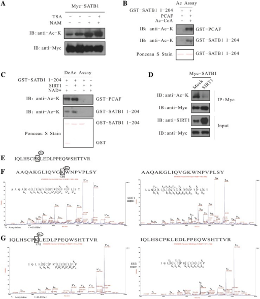 SIRT1 deacetylates SATB1. (A) The 293 cells were transfected with Myc-SATB1 and then treated with TSA and NAM as indicated. Immunoprecipitation was performed using a Myc antibody, and SATB1 acetylation levels were detected by western blotting with an acetylated-lysine antibody. (B) In vitro acetylation assay. Truncated GST-SATB1-1-204 was acetylated in the presence of PCAF and Ac-CoA. The self-acetylated PCAF was used as a positive control, and SATB1 acetylation was detected by western blotting with an acetylated-lysine antibody. The truncated GST-SATB1-1-204 protein was detected by Ponceau S staining. (C) In vitro deacetylation assay. In vitro-acetylated GST-SATB1 1-204 was deacetylated with SIRT1 and NAD+. The self-acetylated PCAF was used as a positive control, and SATB1 acetylation was detected by western blotting with an acetylated-lysine antibody. The truncated GST-SATB1-1-204 protein was detected by Ponceau S staining. (D) The 293 cells were cotransfected with SIRT1 and Myc-SATB1-expressing vectors. Immunoprecipitation was then performed using a Myc antibody, and Myc-SATB1 acetylation levels were detected by western blotting with an acetylated-lysine antibody. The cell lysates were subjected to blotting with the indicated antibodies to show the expression of exogenous SIRT1 and Myc-SATB1. (E) Amino acid sequence of SATB1 containing the acetylated K175. (F) MS/MS spectrum analysis of the SATB1 peptide containing acetylated K136 before and after the in vitro deacetylation assay. (G) MS/MS spectrum analysis of the SATB1 peptide containing acetylated K175 before and after the in vitro deacetylation assay.
