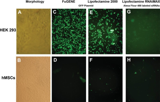 GFP plasmid and siRNA transfection of HEK-293 and hMSCsMorphology of HEK-293 and hMSCs at third passage (A, B). GFP plasmid transfection of HEK-293 and hMSCs with Lipofectamine 2000 and FuGENE transfection reagents. While approximately 100% transfection efficiency was observed for HEK-293 cells, it was about 25% for Lipofectamine 2000 and 15% for FuGENE (C, D, E, F). Transfection with RNAiMAX transfection reagent by using Alexa Fluor 488-labelled siRNA oligos in HEK-293 and hMSCs with approximately 100% and 15% transfection efficiencies, respectively. All pictures were taken following 24 h of transfection (G, H).