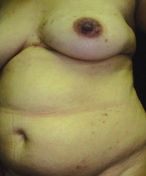 Keratotic papules, some crusted, with reddish- brown coloration, following theBlaschko lines from the left flank to the hypogastric area
