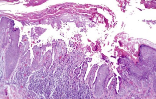 HE 100x: Hyperkeratosis with areas of parakeratosis, acanthosis and suprabasalacantholysis, associated to corps ronds and grains, besides a superficialinflammatory perivascular infiltrate formed by lymphocytes