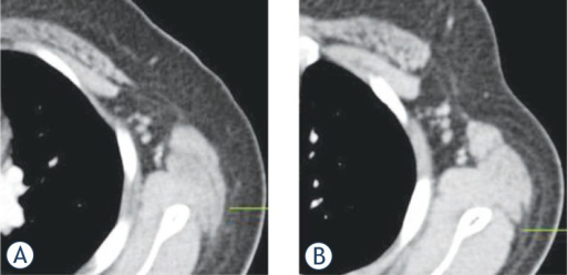 Assessment of axillary fossa in the woman with left breast cancer. A The volume of left axillary fossa measured 15 cm3 in the supine-PET/CT. B The volume of axillary fossa measured 24 cm3 in the mammo-PET/CT and the assessment of axillary fossa for the potential of metastatic axillary lymph node can be more clear and easy tudy group.