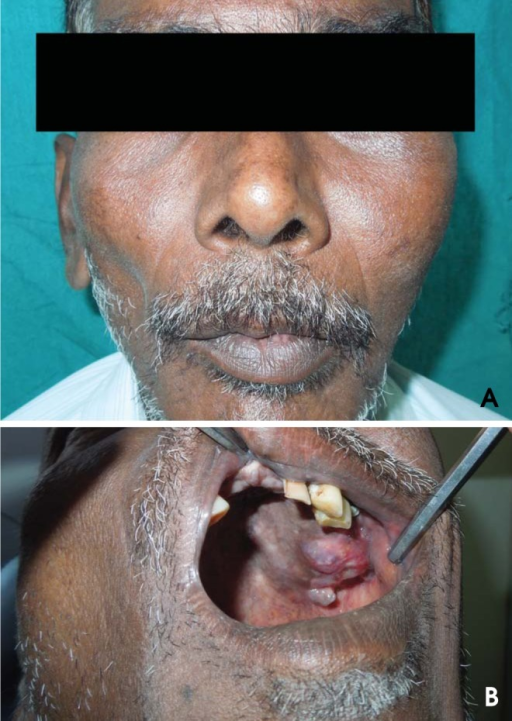 A. A well-defined extraoral swelling is present on the left middle third of the face. B. A well-defined intraoral swelling is present on the left maxilla causing obliteration of the buccal vestibule.