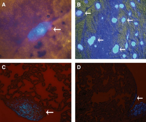 No MSCs were found in the lung parenchyma of rats with LPS-induced ALI after cells were injected intrapleurally. (A) Surface of right lung. (B) Surface of mediastinal pleura. (C, D) Frozen sections of lung tissue. DAPI-marked MSCs masses were found on the surfaces of pleurae and the lung, whereas no fluorescent cells were found in the lung parenchyma (white arrows). All images, ×200 magnification.