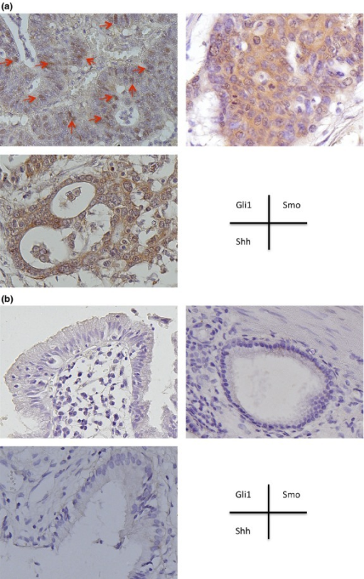 Expression of Hedgehog (Hh) components in gallbladder cancer is significantly higher than in normal gallbladder tissue. Immunohistochemical staining for Hh components in gallbladder cancer (a) or normal gallbladder (b) specimens. Clockwise (from upper left) are antibodies to Gli1, Smoothened (Smo), and Sonic Hh (Shh). A positive reaction is brown in color. Red arrows indicate Gli1 expression in the nucleus of cancer cells. Original magnification, ×400.