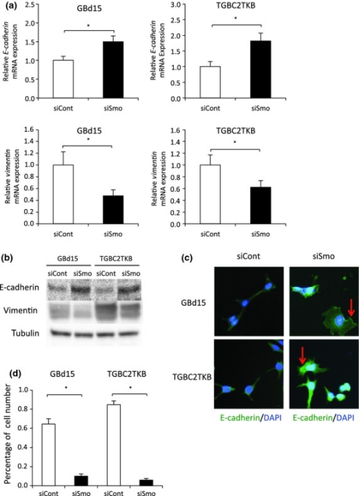Smoothened (Smo)-regulated invasion is mediated through epithelial–mesenchymal transition. (a) Quantitative RT-PCR (b) and Western blotting of E-cadherin and vimentin in Smo-siRNA transfected GBd15 and TGBC2TKB cells. (c) GBd15 and TGBC2TKB cells transfected with control siRNA (siCont) or Smo siRNA (siSmo) were immunostained with E-cadherin antibody (green) and DAPI (blue). Red arrows, E-cadherin accumulated in the membrane of Smo siRNA transfected cells. Original magnification, ×200. (d) GBd15 and TGBC2TKB cells transfected with Smo siRNA for 48 h before the number of spindle-shaped cells were counted using bright-field microscopy. Error bars represent standard deviations. *P < 0.05.