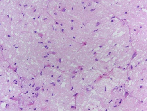 Right temporal lobe biopsy. HE staining. Magnification is ×40. Mildly hypercellular and gliotic gray matter with focal reactive changes. No neoplasia is seen.