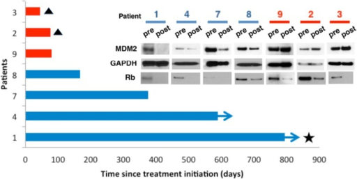 MDM2 loss is associated with patient response to PalbociclibSeven patients with measurable advanced WD/DDLS confirmed positive for CDK4 amplification and Rb protein expression, and whom had progressed on at least one systemic therapy prior to enrollment (clinicaltrials.gov identifier NCT01209598), consented to pre-treatment biopsies taken prior to therapy and post-treatment biopsies taken after receiving one dose of oral PD0332991 (125mg daily for 21 days). Tumor response was assessed with CT scan by a reference radiologist every 6 weeks for 36 weeks, and every 12 weeks thereafter. Patients were followed up until March 2014. Three patients (red bars) did not derive clinical benefit and stopped treatment within 84 days. Two of these patients (#2 and #3, triangles) died on study and are indicated with a triangle. The third patient, #8, came off study as their disease progressed. Four patients (blue bars) had demonstrable clinical benefit, remaining on treatment for more than 84 days. Two of these progressed after 168 (#8) and 376 (#7) days respectively, while two remained on treatment with ongoing benefit (arrows), one achieving a complete response (star). (Inset) Extracts were prepared from pre- and post-treatment biopsies of protein expression measured by immunoblot. GAPDH was a loading control.