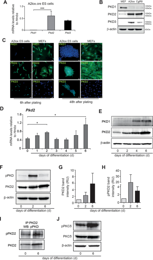 Expression of PKD isoforms in mouse embryonic stem cells.(A) mRNA levels of PKD 1/2/3 in undifferentiated A2lox mouse ESCs. (B) Western Blot analysis of PKD1/2/3 in A2lox.cre and CgR8 ESCs. MEFs served as positive control. (C) Immunofluorescence staining for PKD1, PKD2 and PKD3 (green) in undifferentiated A2lox mES cells 6 h and 48 h after plating under pluripotency conditions. Nuclei are stained with DAPI (blue). MEFs served as positive control. (D) PKD2 mRNA expression levels during EB differentiation until day 6 of ESCs. (E) Western blot analysis of PKD1 and PKD2 protein levels during differentiation until day6 in differentiating ES cells. (F) Western Blot of phospho-PKD and PKD2 indicating catalytic activity by phosphorylation within the activation loop at two conserved serine residues. (G,H) Relative band intensity of PKD2 (G) and pPKD2 (H) days 0, 2 and 6. Two experiments of three included into the quantification. (I) Immunoprecipitation of phospho-PKD2 (pPKD2) and PKD2 on Days 0 and 6. (J) Western Blot of PKCδ and phospho-PKCδ on Days 0 and 6. qPCRs were performed n = 3 in replicates. Western Blots are representative for three independent experiments. Scale bars 20 μm.