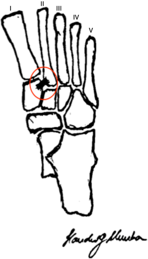 Representation of the bone anatomy of the midfoot and h | Open-i
