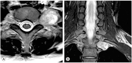 T2-weighted axial and coronal magnetic resonance image (MRI). (A) Axial MRI at T1-2 level, (B) coronal MRI.
