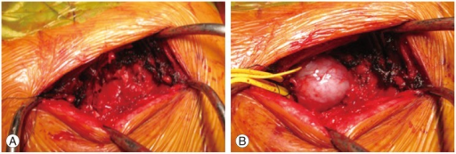 Intraoperative photo in the prone position following video-assisted thoracic surgery (VATS). (A) Partial costotransversectomy was performed. (B) The preceding VATS ensured tumor mobility in the prone position. Gentle handling enabled the tumor to be moved to the surface.