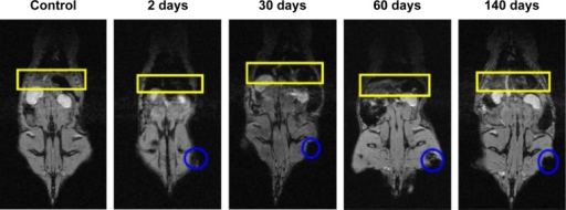 Typical series of MRI images of a Wistar rat treated with 50 mg/kg of cat-USPIOs as a function of time from zero up to 140 days after IV administration, highlighting the contrast in liver and spleen.Notes: The negative contrast in the left thigh is due to the accumulation of cat-USPIOs induced by a magnet placed on that local for 2 hours after IV injection. The liver and the spleen are indicated by a yellow rectangle; and a blue circle indicates the negative contrast in the thigh.Abbreviations: cat-USPIOs, cationic ultrasmall superparamagnetic iron oxide nanoparticles; MRI, magnetic resonance imaging; IV, intravenous.