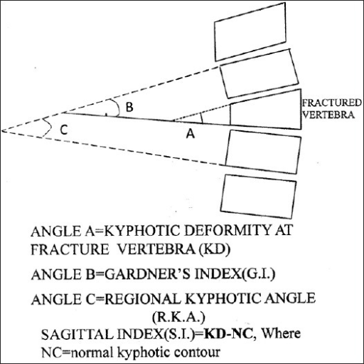 Diagrammatic representation of calculation of kyphotic deformities