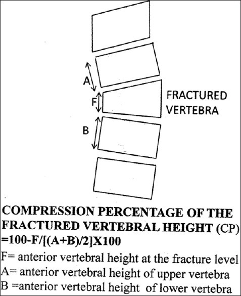 Diagrammatic representation of calculation of compression percentage of the fractured vertebral height