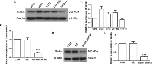 Girdin shRNA decreases the gene expression of girdin. (A and B) Protein expression levels of girdin in the U373, U251, A172, U87-MG and SHG-44 cell lines were detected using western blot, with β-actin as a reference. (C) Changes in mRNA levels of girdin were detected using reverse transcription-quantitative polymerase chain reaction, following transfection with girdin shRNA. The relative mRNA expression level in each sample was quantified using the 2−∆∆Ct method. (D and E) Expression levels of girdin were measured using western blot analysis following transfection. Each experiment was repeated three times. The experimental results are presented as the mean ± standard deviation. ***P<0.001, compared with the NC group. shRNA, short hairpin RNA; NC, negative control.