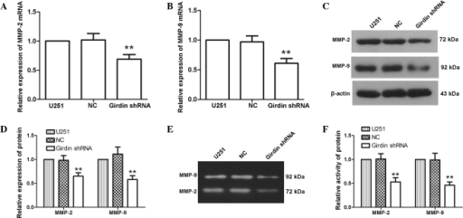 Girdin silencing inhibits the expression and activity of MMP-2 and MMP-9. (A and B) Changes in the mRNA levels of MMP-2 and MMP-9 were measured using reverse transcription-quantitative polymerase chain reaction following transfection. The relative mRNA expression levels were calculated using the 2−ΔΔCt method. (C and D) Following transfection, changes in the protein levels of MMP-2 and MMP-9 were detected using western blot analysis. (E and F) Following transfection, gelatin zymography was performed to detect changes in the activities of MMP-2 and MMP-9. Each experiment was repeated three times. The experimental results are presented as the mean ± standard deviation. **P<0.01, compared with the NC group. shRNA, short hairpin RNA; NC, negative control.
