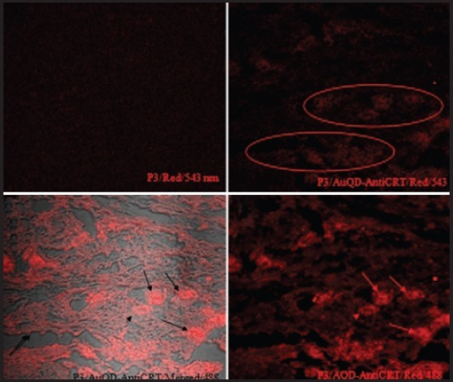 Laser scanning confocal fluorescence microscopy photomicrographs illustrating a pancreatic neuroendocrine tumor before and after exposure to fluorescent gold quantum dots bio-conjugated to anti-calreticulin polyclonal antibodies