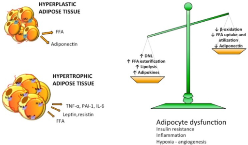 Imbalance in lipid metabolism causes increased efflux of FFA to adipose tissue. Reduced free fatty acids (FFA) utilization and β-oxidation and increased lipogenic and lipolytic pathways lead to overflow of FFA in the circulation. Adipose tissue activates adipogenesis and increases the number of adipocytes becoming hyperplastic or enlarges adipocyte size becoming hypertrophic. Hyperplastic adipose tissue is normally metabolically healthy while hypertrophic adipose tissue is characterized by dysfunctional adipocytes, insulin resistance, hypoxia and inflammation.
