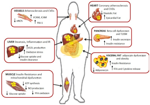 Ectopic fat accumulation and effect of lipotoxicity. Fat accumulation in non-adipose tissues promotes cell dysfunction, insulin resistance and inflammation in liver, muscle, pancreas and visceral fat. Also in vessels and heart lipotoxicity leads to increased risk for cardiovascular diseases and atherosclerosis. Modified from Gaggini M. et al. [2].