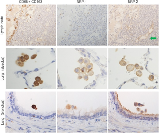 NRPs expression in tissue-specific macrophages compared to immunostaining with a cocktail of anti-CD68 and anti-CD163 antibodies.Tissue-specific macrophages were recognized by immunostaining with a cocktail of anti-CD68 and CD163 antibodies in serial sections. NRP-1 and NRP-2 expression was detected in alveolar macrophages in lung, but not in lymph node (sinus macrophages). And NRP-1 and NRP-2 also expressed on bronchial macrophages. Green arrow indicates NRP-2 expression on lymphatic vascular endothelium, used as positive control. Serial sections were counterstained with hematoxylin. NRP-1, neuropilin 1; NRP-2, neuropilin 2.