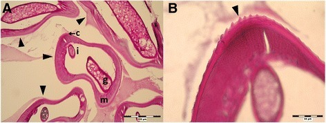Histological section of subcutaneous formation extracted from hypogastrium (PAS staining; Case 1). a Section of the nodule containing the coiled worm (arrowheads) with visible genital tube (g), intestine (i), coelomyar musculature (m) and striated cuticle (c); 100 x. b Detailed view on longitudinal and transversal striation of the cuticle (arrowhead); 400 x