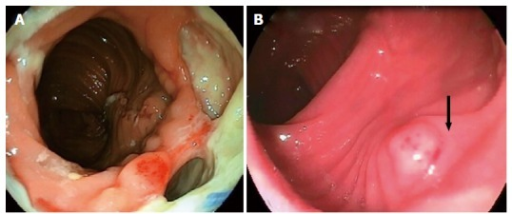 Endoscopic appearance of anastomotic leakage. A: Anastomotic leak with a cavity before endoscopic vacuum-assisted closure therapy; B: The same cavity covered with granulation tissue (black arrow) three weeks after vacuum therapy was initiated.