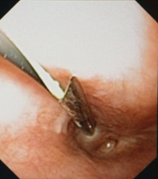Advancement of the guide wire through the trocar needle from the pharyngeal side to the upper oesophagus.