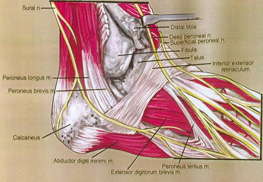 sural nerve; distal tibia; deep fibular (peroneal) nerv | Open-i