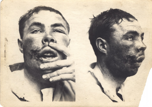 <p>Black and white photograph of an injured soldier with facial wounds posing at two different angles.  There is a wound on the right side of the patient's face and he is raising his lips with his hand to show injury to the teeth.</p>