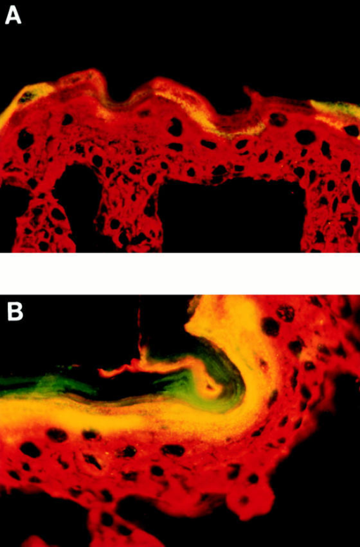 Increased repetin expression in Lor−/− mice. (A) Staining of back skin from a newborn wild-type mouse with antibodies against repetin (green) and K14 (red). Overlapping expression of both proteins results in yellow fluorescence. Note the focal expression pattern and lack of accumulation in the stratum corneum. (B) Staining of Lor−/− neonatal back skin. Note the more uniform expression pattern and the presence of repetin at the periphery of corneocytes in the stratum corneum. Also, note the apparent accumulation of repetin in granules in the granular layer of both wild-type and Lor−/− epidermis.
