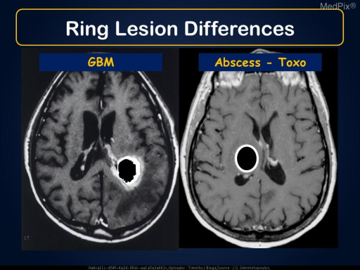 Glioblastoma Multiforme vs. Abscess (toxoplasmosis).  The GBM has a thick rim with a shaggy and irregular inner  margin; while the abscess wall is thinner and smoother - and also more uniform.