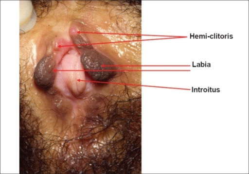 Herpes Type 2 Primary Photos - Dermatology Education