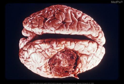Vertex View of Brain: There is a large circumscribed metastasis indenting the lateral aspect of one hemisphere. The tumor tissue is hemorrhagic and somewhat papillomatous. Dura is adherent over the central portion. Brain swelling is present in both hemispheres. Metastatic angiosarcoma from primary in mandibular region.