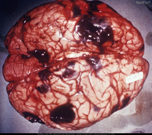 Vertex view of the brain: Multiple blue-black nodules are shown, some flush with the surface of the brain and others scattered in the cortex of both hemispheres. There is intense brain swelling. Metastatic melanoma primary in eye with wide visceral spread.