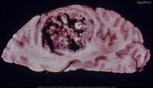 Horizontal Section through One Hemisphere: A large circumscribed nodule with a papillomatous center occupies a large part of the centrum ovale and extends to the cortical gray ribbon. Metastasis from carcinoma of the larynx.