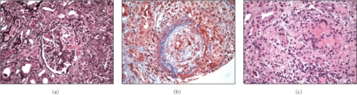 (a) Crescent formation. (b) Granuloma. (c) Vasculitis in medium-sized renal artery.