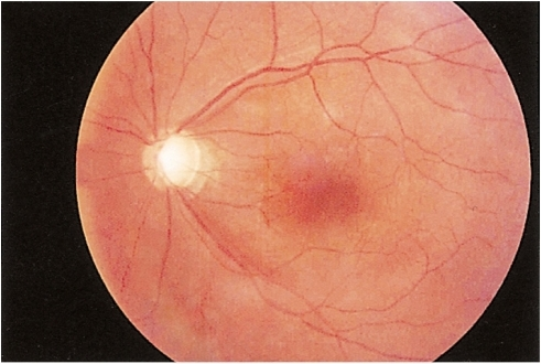 This is a photograph of the fundus in the left eye two months after the multiple retinal hemorrhages. The hemorrhages are almost completely resolved. Visual acuity with correction was 0.16 (OS).