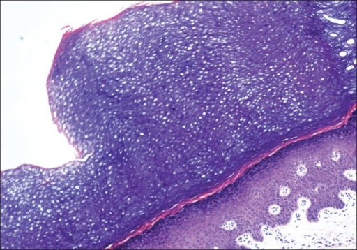 Skin biopsy specimen from border of the lesion: sharp step-off from the thick stratum corneum of normal acral skin to the thin stratum corneum of the involved skin (hematoxylin–eosin staining; original magnification ×200)