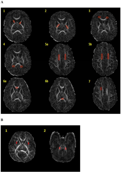 Study and control region of interest templates and placements shown on FA maps.Panel A: 1) Anterior limb of internal capsule, 2) Posterior limb of internal capsule, 3) Frontal periventricular zone, 4) Occipital periventricular zone, 5a–b) Centrum semiovale at two consecutive levels, 6 a–b) Genu and splenium of corpus callosum, and 7) Subventricular zone. Panel B: 1) External capsule, 2) Middle cerebellar peduncles. Same templates were utilized for all scans.
