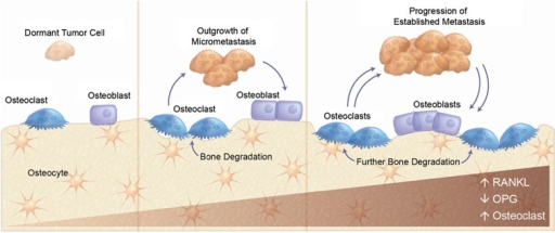 Interaction with the bone microenvironment supports tumor metastasis. OPG, osteoprotegerin; RANKL, RANK ligand.