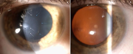 a Slit lamp microscopy shows an oval scar (black arrow), multiple linear opacities (white arrows) and the Fleischer ring (light blue arrows). b Retroillumination technique clearly shows diffuse guttae and, on the left, the apex of KC.