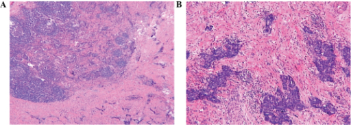 (A and B) Post-surgical pathology of the mass revealing small-cell carcinoma of the stomach. (A) Magnification, ×100. (B) Magnification, ×200.