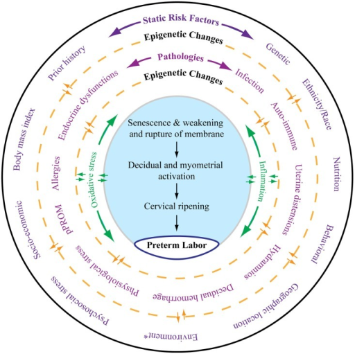 As depicted in this figure, preterm labor (the innermost circle) is an end result of multitudes of complex interacting pathologies and pathophysiologic pathways. The external layer (the outermost circle) shows static risk factors, including epidemiologic and genetic risk factors, that can lead to multiple disease processes as depicted in the middle circle. Epigenetic markers can be dynamic, and that complex interaction between the host environment and risk factors can produce epigenetic changes, which can lead to diseases contributing to final effecter pathways (the blue shaded area). Various diseases may also cause epigenetic changes in the genes of preterm labor pathways. Spontaneous preterm labor leading to preterm birth is a complex syndrome comprising multiple diseases, each of which can be independent initiators of labor-inducing pathways. All these disease processes can trigger inflammation and oxidative stress (OS). However, the extent and biomolecular characteristics of inflammation and OS are dependent on the type of risk that initiated the process, their complex interactions with the genetic–epigenetic system, and the disease that they cause. The final terminal pathways that involve inflammation and OS trigger labor-inducing signals from fetal membranes and decidua and cause cervical ripening, myometrial contractions, and membrane rupture, resulting in preterm labor and delivery. *Any exogenous factor that can impact pregnancy outcomes. Many of the static risk factors in the outer circles are also called environments.