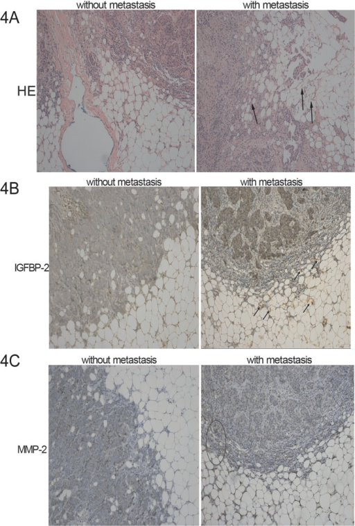 Immunohistochemical staining of IGFBP-2 in human adipocytes and MMP-2 in human breast tumors.4A. Sections of metastatic and non-metastatic breast tumors and surrounding adipocytes were stained by hematoxylin and eosin (magnification 100 ×). Peritumoral adipocytes from infiltrant metastatic mammary tumors appear smaller and more spindle-shaped. 4B. Representative microphotographs show IGFBP-2 in human adipocytes around metastatic and non-metastatic breast tumors. Human adipocytes around metastatic breast tumors had higher levels of IGFBP-2 than did those around non-metastatic primary tumors. Arrowheads indicate IGFBP-2 positive cells (magnification 100 ×). 4C. Representative microphotographs show MMP-2 in metastatic and non-metastatic human breast tumors. Metastatic human breast tumors had higher levels of MMP-2 than did non-metastatic tumor tissue. Ellipse indicates MMP-2 positive cells at the edge of tumor (magnification 100 ×). The negative control was obtained by omitting the primary antibody.