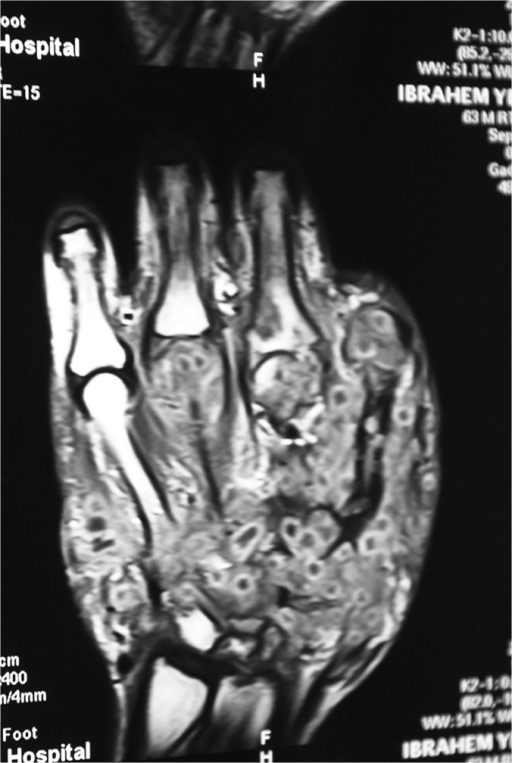 Showing hand MRI with an extensive eumycetoma lesion in   Open-i