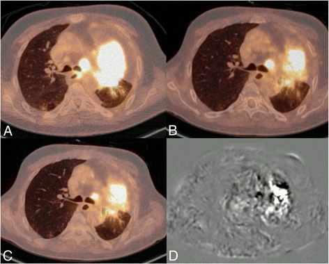 Example image of patient 7: baseline (A), reference (B), elastix adjusted (C) and subtraction (D). Because of a mix of non-active and active tumor tissue between the two scans (and no visible decrease in anatomic tumor size with stable disease), only 57% of the voxels aligned within the 95% limits of agreement of −1.46 to 1.46 ΔSUV. However, on crude visual assessment, the images look very similar.