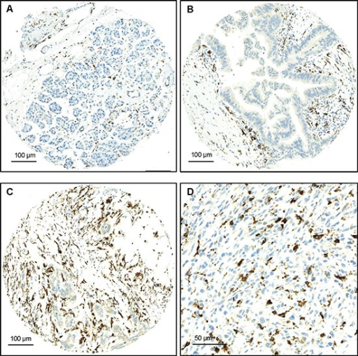 Examples of FOXP3 staining(A) Normal pancreatic tissue with low counts of FOXP3+ T-cells, x100 (Bar:100μm); (B) PanIN with moderate FOXP3+-T-cell infiltrates, x100 (Bar:100μm); (C) PDAC with numerous peritumoral FOXP3+T-cells x100 (Bar:100μm); (D) PDAC with numerous peritumoral FOXP3+T-cells, x400 (Bar:50μm).