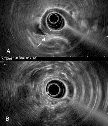 (A) Endoscopic ultrasound showed a 5.4 mm thickening of the internal circular muscular layer in the lower part of esophagus, at 35 cm from teeth (arrow). (B) Endoscopic ultrasound showed the level of transition with normal muscular layer at 17 cm from teeth (neck level).
